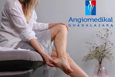 angiólogos-en-guadalajara-5